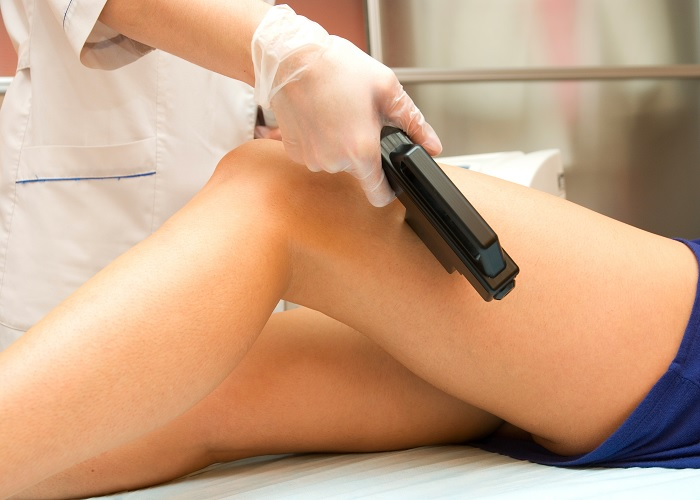 A Look At Laser Hair Removal